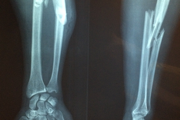 Reasons why you can scuba dive with a broken bone