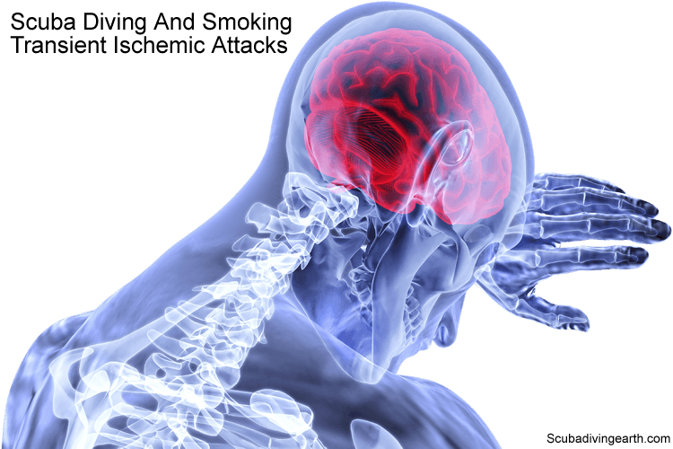 Scuba diving and smoking - Transient ischemic attacks