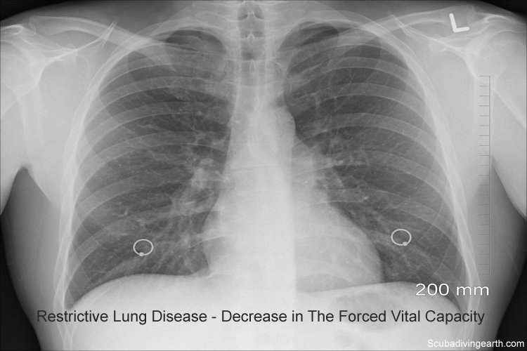 Scuba diving and smoking - Restrictive lung disease - Decrease in the forced vital capacity